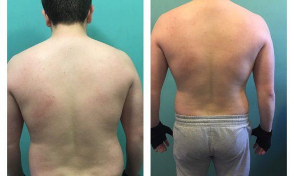 Nathan Transformation